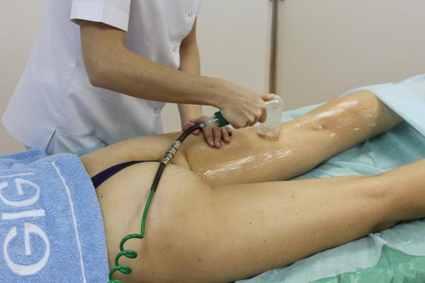 Аппаратный вакуумный массаж