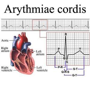 Аритмия сердца (arythmiae cordis)