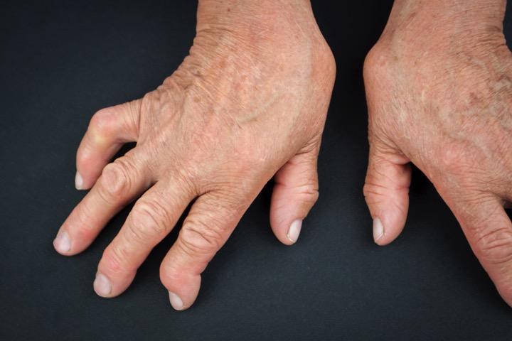 Артрид ревматоидный на руках