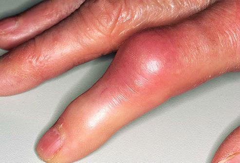 Артрит пальца. Покраснение