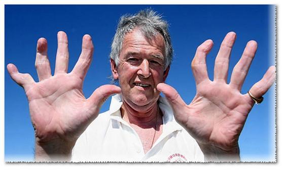 Артрит пальцев рук - фото