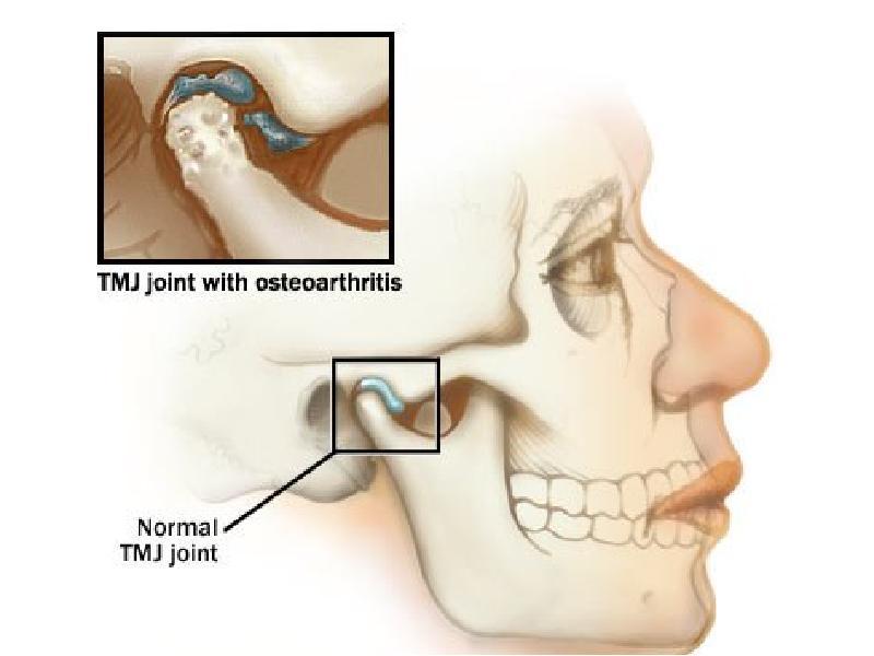 Артроз височно-нижнечелюстного сустава - хроническое заболевание