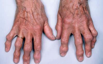 Артроз рук