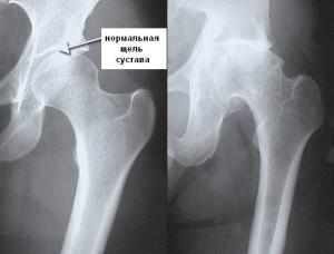 Артроз тазобедренного сустава на рентгене