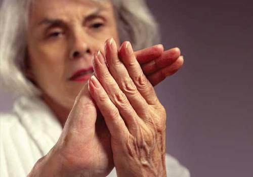 Артроз часто возникает у людей после 40 лет