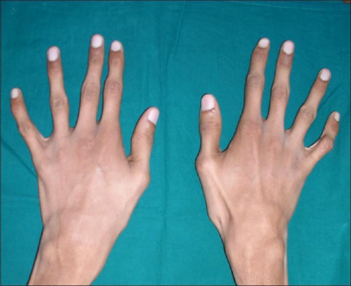 суставы пальцев форма