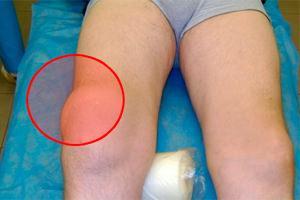 Боли при сгибании колена