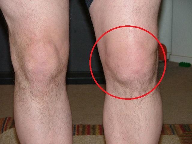 Больное колено - фото