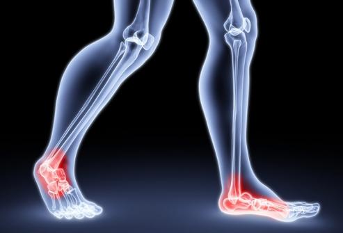 Боль в области пораженных суставов локально или распространяющаяся