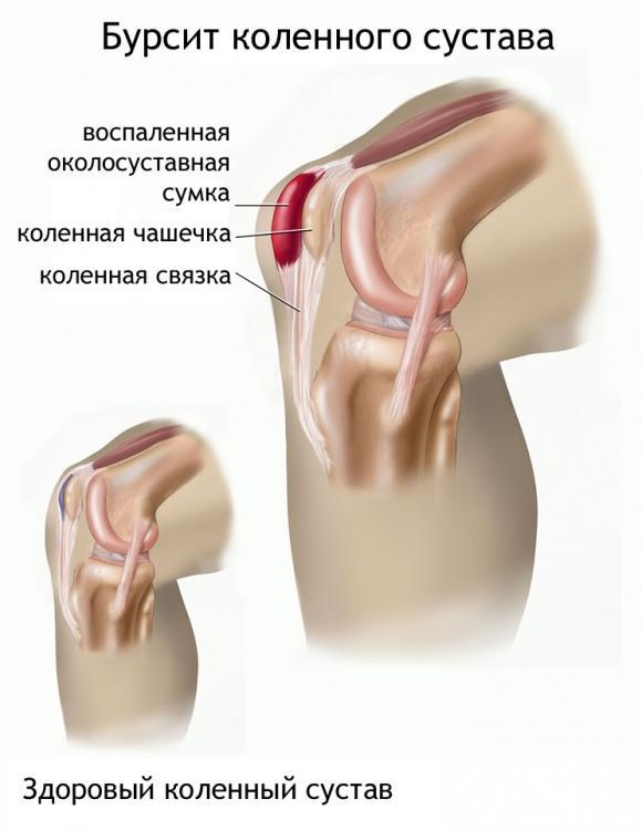 Бурсит коленного сустава и здоровый сустав - схемы