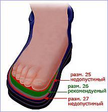 Важно правильно выбирать качество и размер обуви