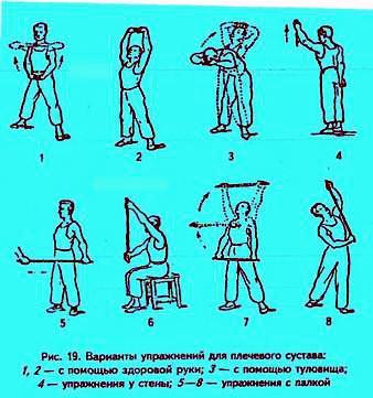 Варианты упражнений после вывиха