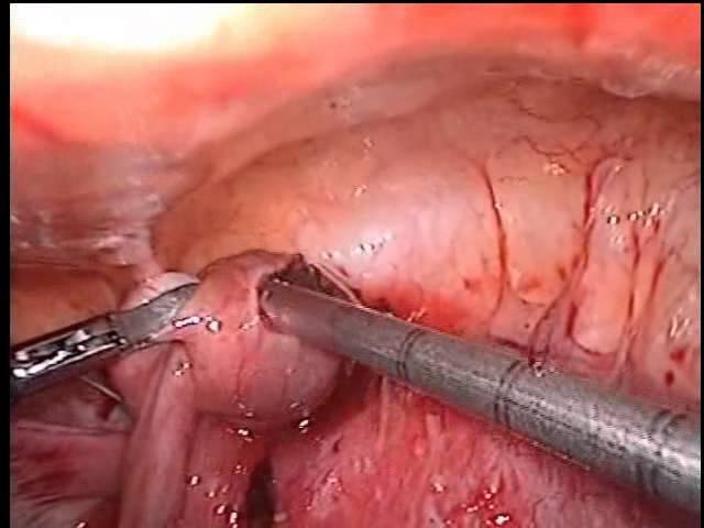 Внематочная беременность. Лапароскопия