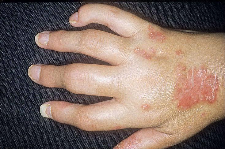 Воспаление нескольких суставов одновременно, вызванное течением псориаза, называется псориатическим полиартритом