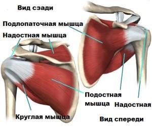 Воспалительное поражение сухожилия подлопаточной мышцы