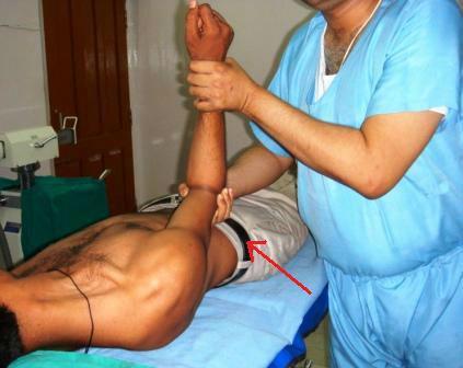 Вправление вывиха плеча врачом