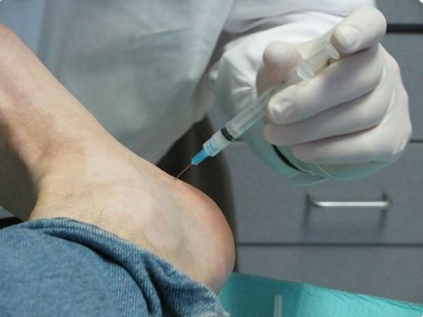 Боли в кистях рук и ступнях причины и лечение