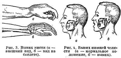 Вывих кисти и вывих нижней челюсти