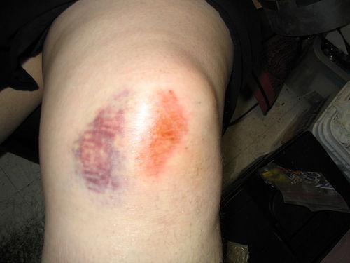 Вывих колена - фото, симптомы