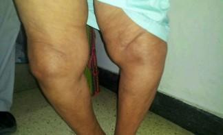 Деформирующий хрнический артроз колен