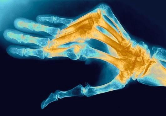 Диагностика ревматоидного полиартрита