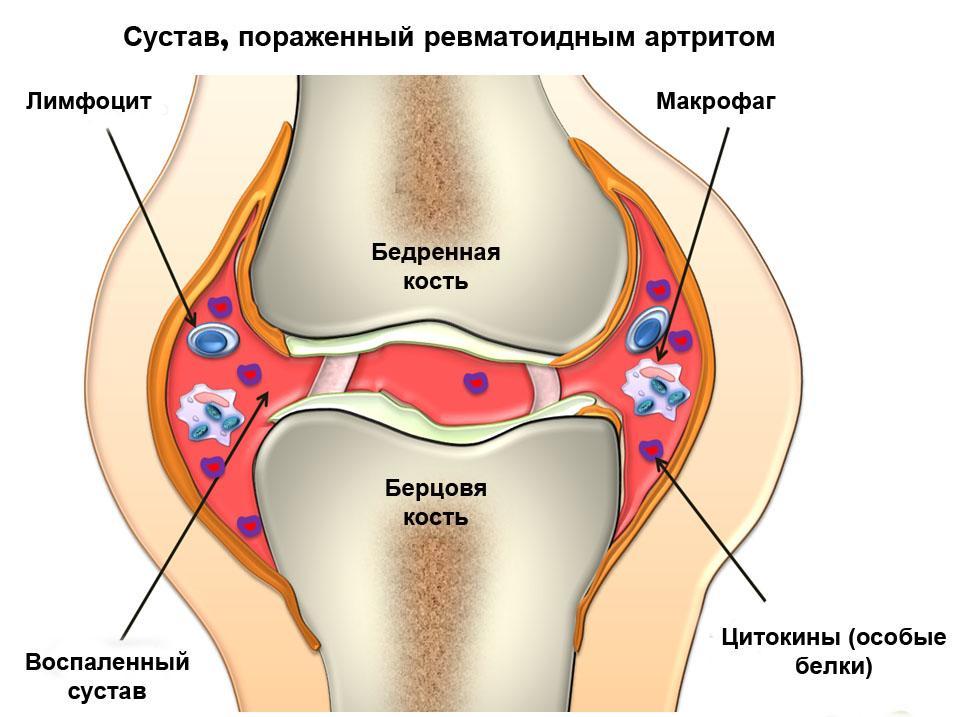 Диета поможет облегчить боли и уменьшить воспаление