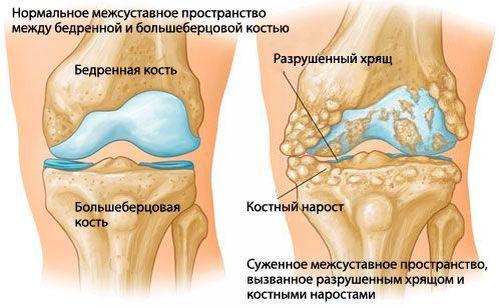 Дистрофические изменения хрящей колена