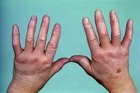 Инфекционный артрит