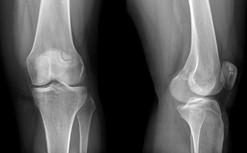 Классификация вывихов коленной чашечки