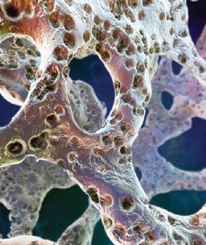 Клиническое значение остеопороза определяется в первую очередь риском переломов костей скелета
