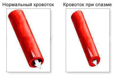 Кровоток нормальный и при спазме