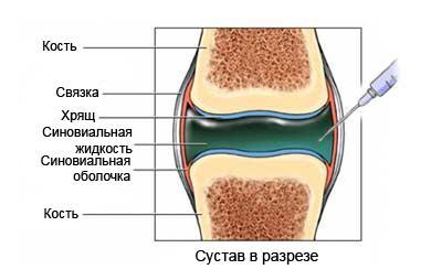Лечебно-диагностические пункции