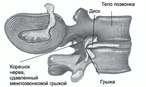 Что такое дорзальная грыжа шейного отдела