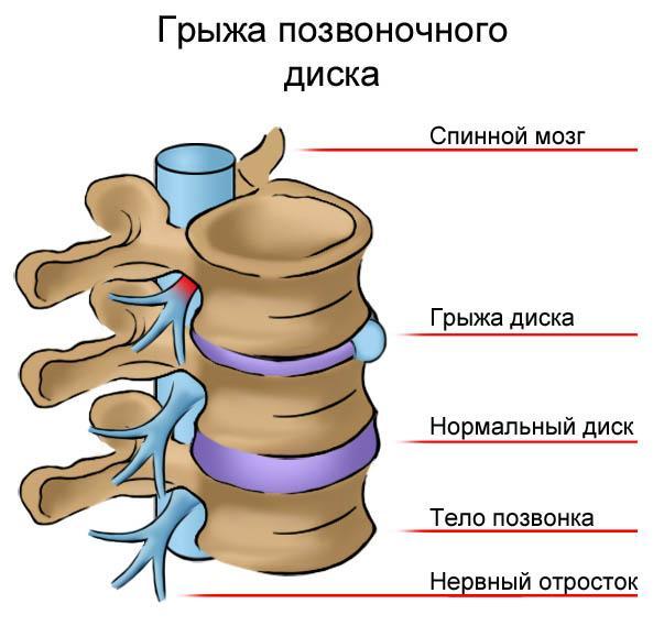Болит живот внизу слева отдает в спину что это