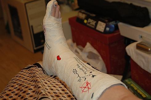 Наложенный гипс при вывихе ноги в области щиколотки