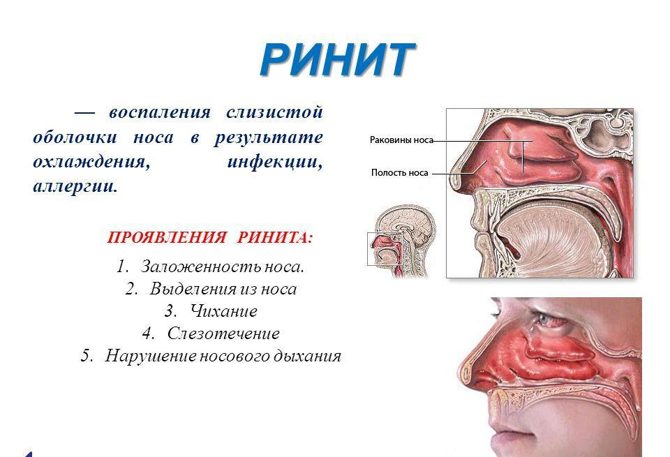 Как лечить хронический вазомоторный ринит операция