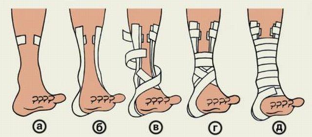 На фото пошаговая инструкция по накладыванию повязки при вывихе голеностопа