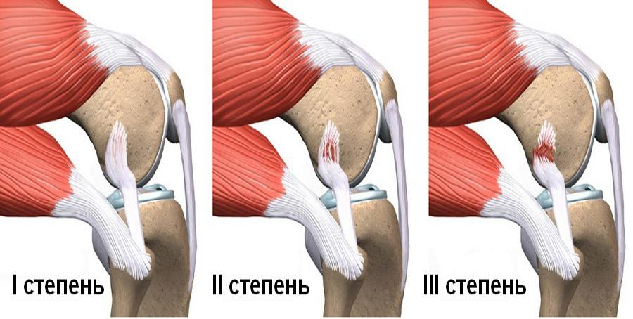 Определяем разрыв связки колена