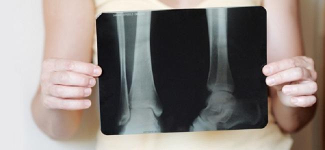 Остеопороз костей на рентгене