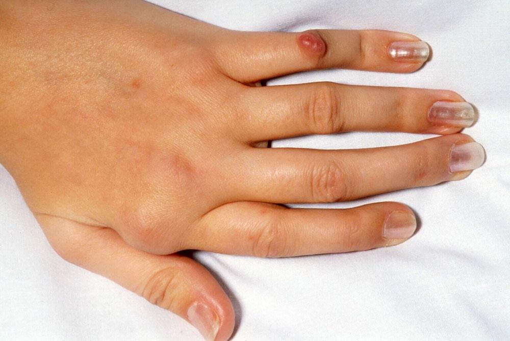 Пальцы, деформированные артрозом