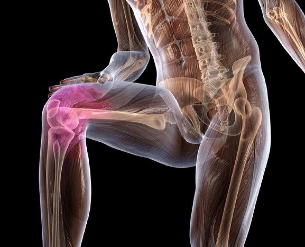 снимки артроза коленного сустава