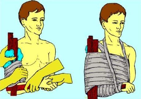 Первая помощь при травме плеча