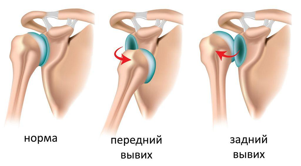 Передний и задний вывих плеча