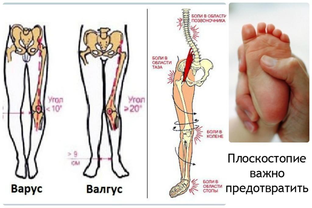 болит тазобедренный сустав и вся нога вплоть до ступни