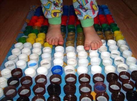 Плоскостопие у детей можно вылечить