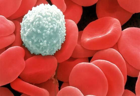 Повышенное содержание мочевой кислоты в крови и является выраженной реакцией кожи в виде покраснений