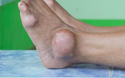 Подагра на ногах - фото