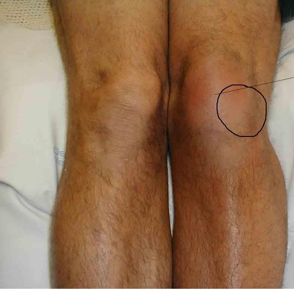 Пухлые колени фото 17 фотография
