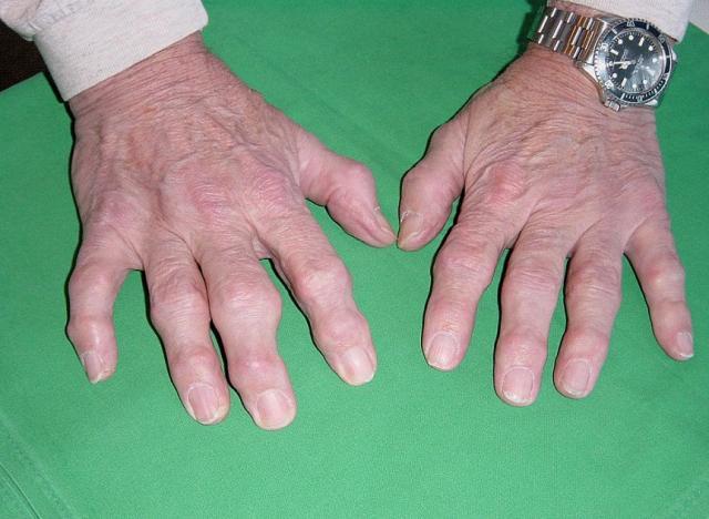 Полиартрит. Лечение