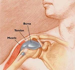 При тендините сустав болит непосредственно во время нагрузки